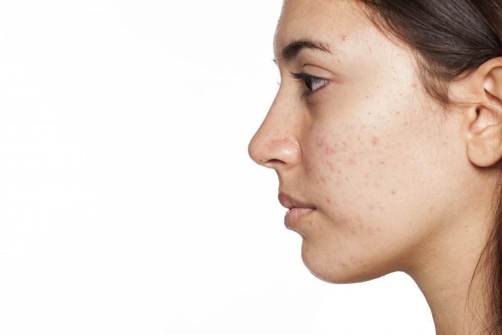You Don't Have to Live with Acne Scars: Here's How to Get Rid of Them